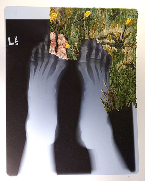 Feet 72MAtthewCox
